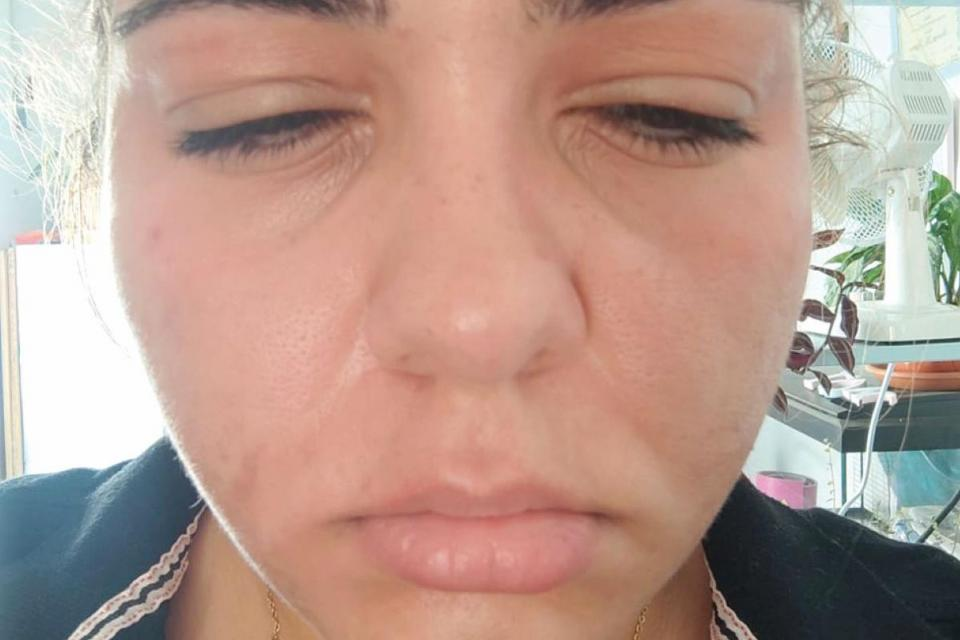Maria Ciappara has an undiagnosed severe allergy that causes her face and throat to swell and blocks her airways.