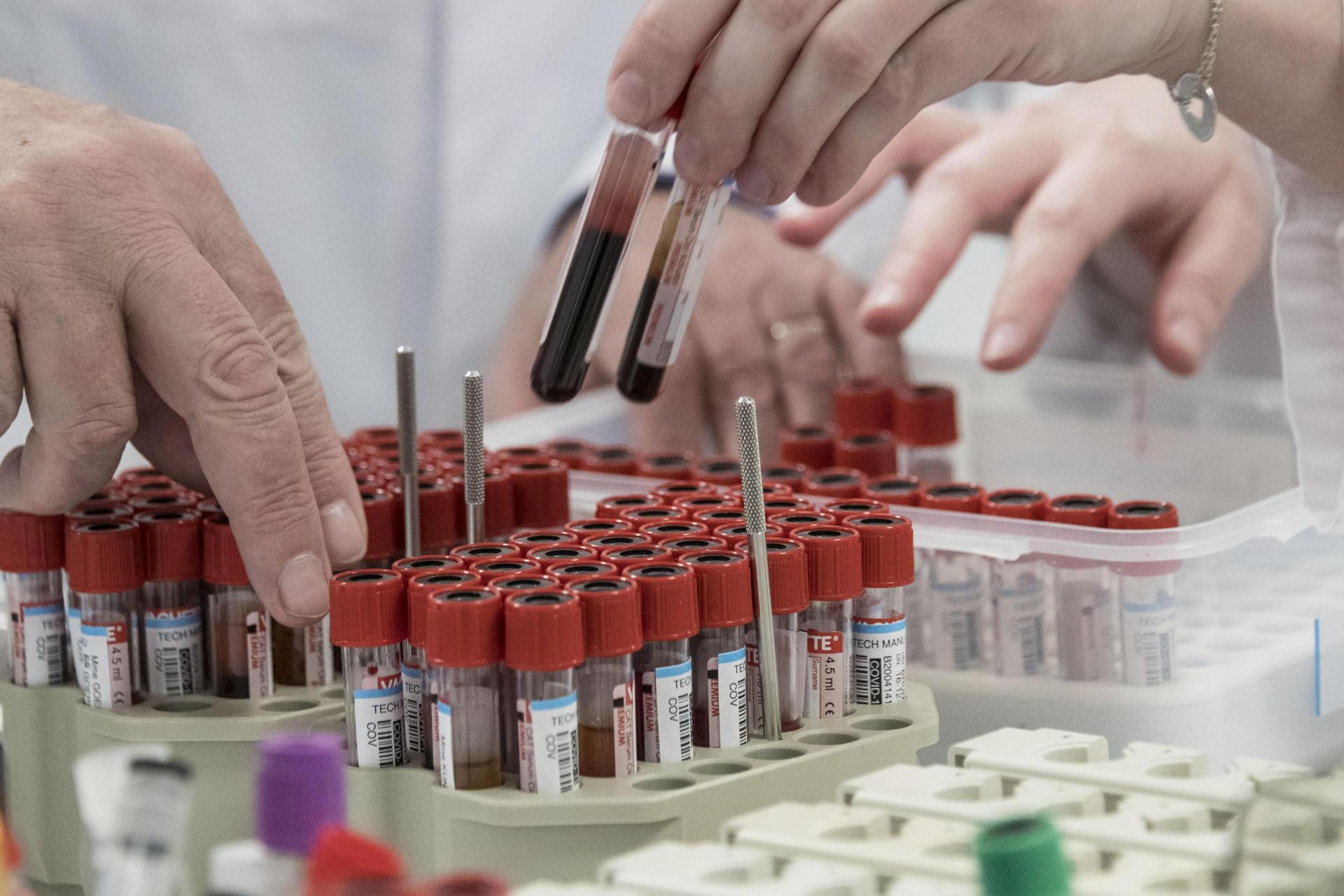 Staff members of the Barrand laboratory sort blood samples for COVID-19 serological tests in Colmar, eastern France, on April 14. Photo: AFP