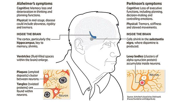 Diseases of the brain: progressive conditions affect the body and mind in different ways.