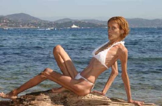 Anorexia Model Dies