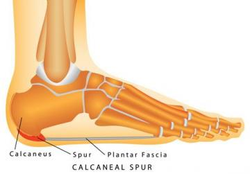 Plantar fasciitis may or may not be complicated by a calcaneal spur, a small bone growth that protrudes out of the heel.
