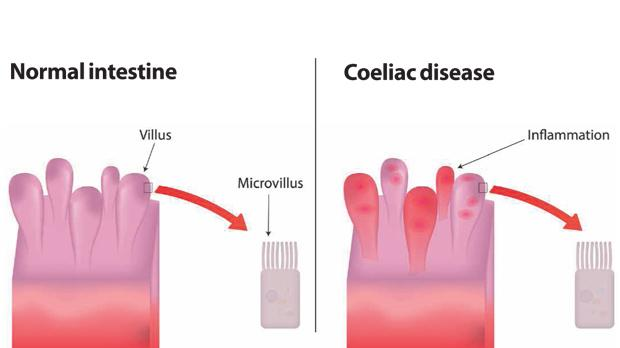 How Coeliac Disease Affects Your Body