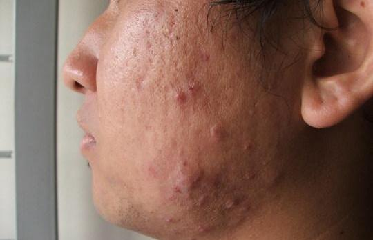 Acne Laser Treatment Wellington