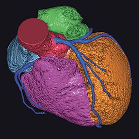 A 3D reconstruction of the heart with the coronary arteries shown in dark blue. Photo provided by Luise Reichmuth