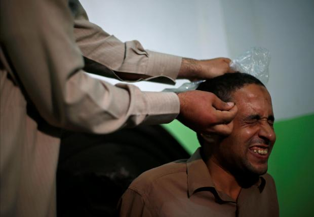 A patient gets stung with bee venom. Photo: Reuter