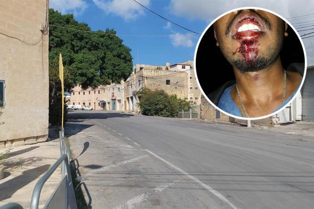 Asylum seeker assaulted by four men in Marsa, warns of danger