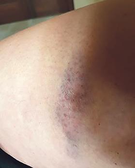 Battered and bruised… oneLSE'sinjuries.