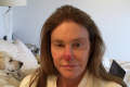 Caitlyn Jenner warns about sun exposure after having skin damage removed