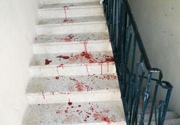 Blood on the stairs at an apartment in Qawra.
