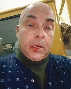 Mr Sciré's injuries