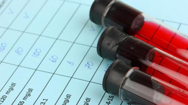 Major breakthrough as new blood test can detect cancer