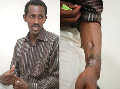 Million Mesfin Berhe. A deformed bone and punctured flesh, inflicted during his time in prison. Photos: Chris Sant Fournier.