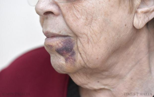 A bruised elderly woman who was attacked by two robbers in her house in Swieqi talks to Times of Malta a few days after her ordeal, on November 30. Photo: Mark Zammit Cordina