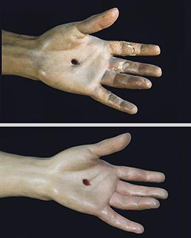 Before and after the conservation and restoration of the left hand.