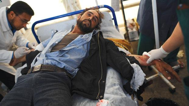 An injured man being treated in a hospital in Misurata. Photo: AFP
