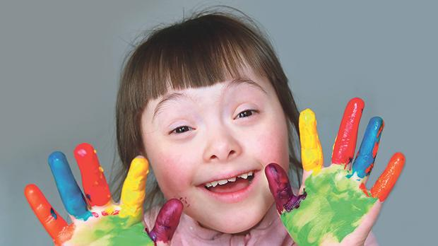 "Denmark is working to become ""Down's syndrome-free"", like Iceland, within the next decade."